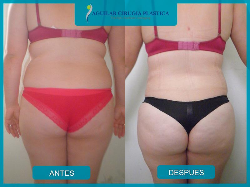 gluteosbrasileros-011