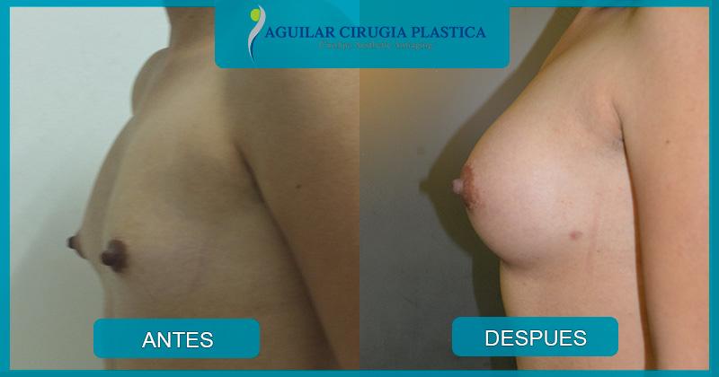 implantemamario-029jpg