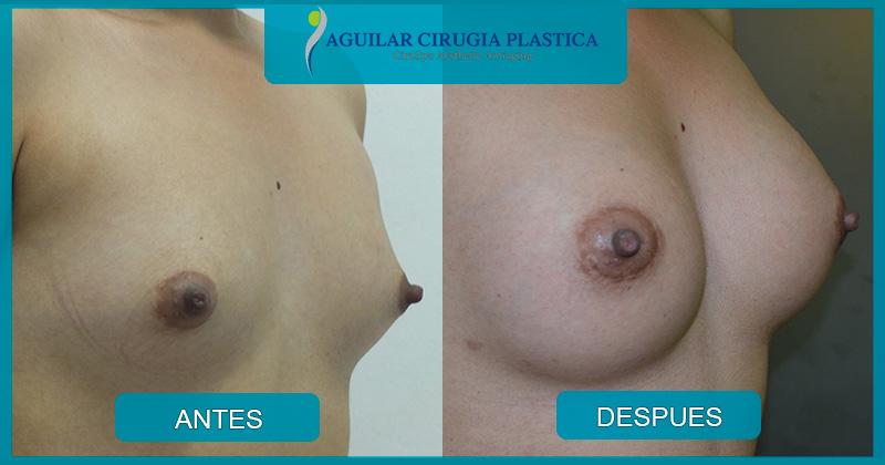 implantemamario-033
